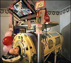 Η Dianne Odell ξαπλωμένη μέσα στον τεράστιο μεταλλικό κύλινδρο που καλύπτει ολόκληρο το σώμα της, εκτός από το κεφάλι
